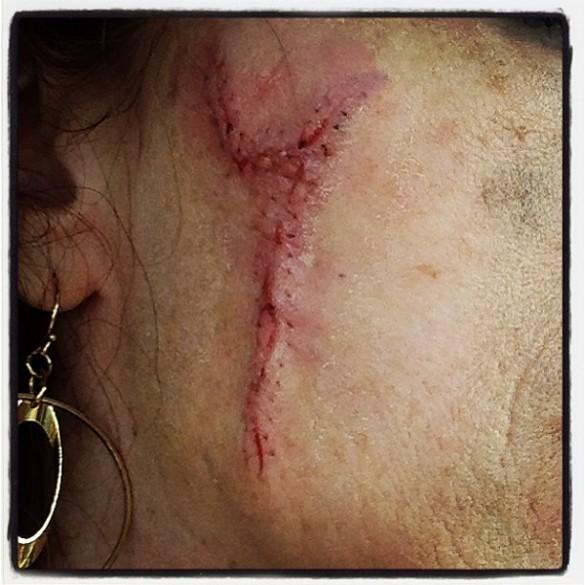 melanoma surgery scar
