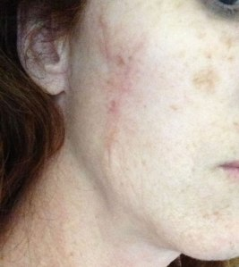 mohs surgery scar update 2 months